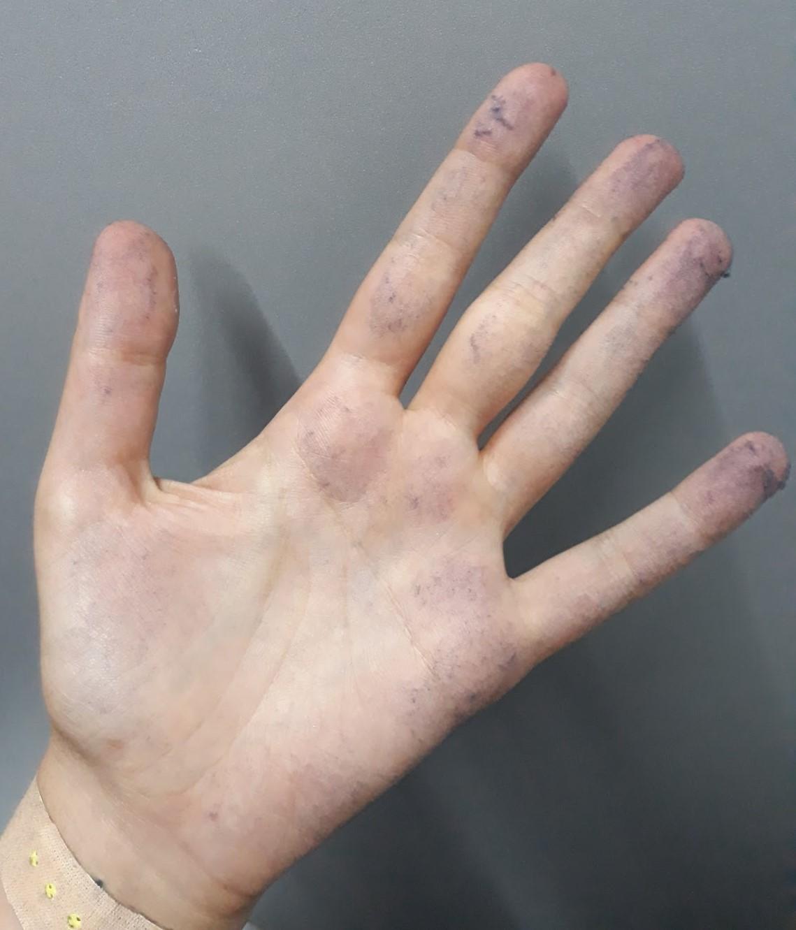 ჯინსებთან მუშაობისას ლურჯი მტვერი წარმოიქმნება, რომელიც ყველა ზედაპირზე რჩება, მათ შორის დასაქმებულთა ხელებზეც. ფოტო: თამუნა ჩქარეული.
