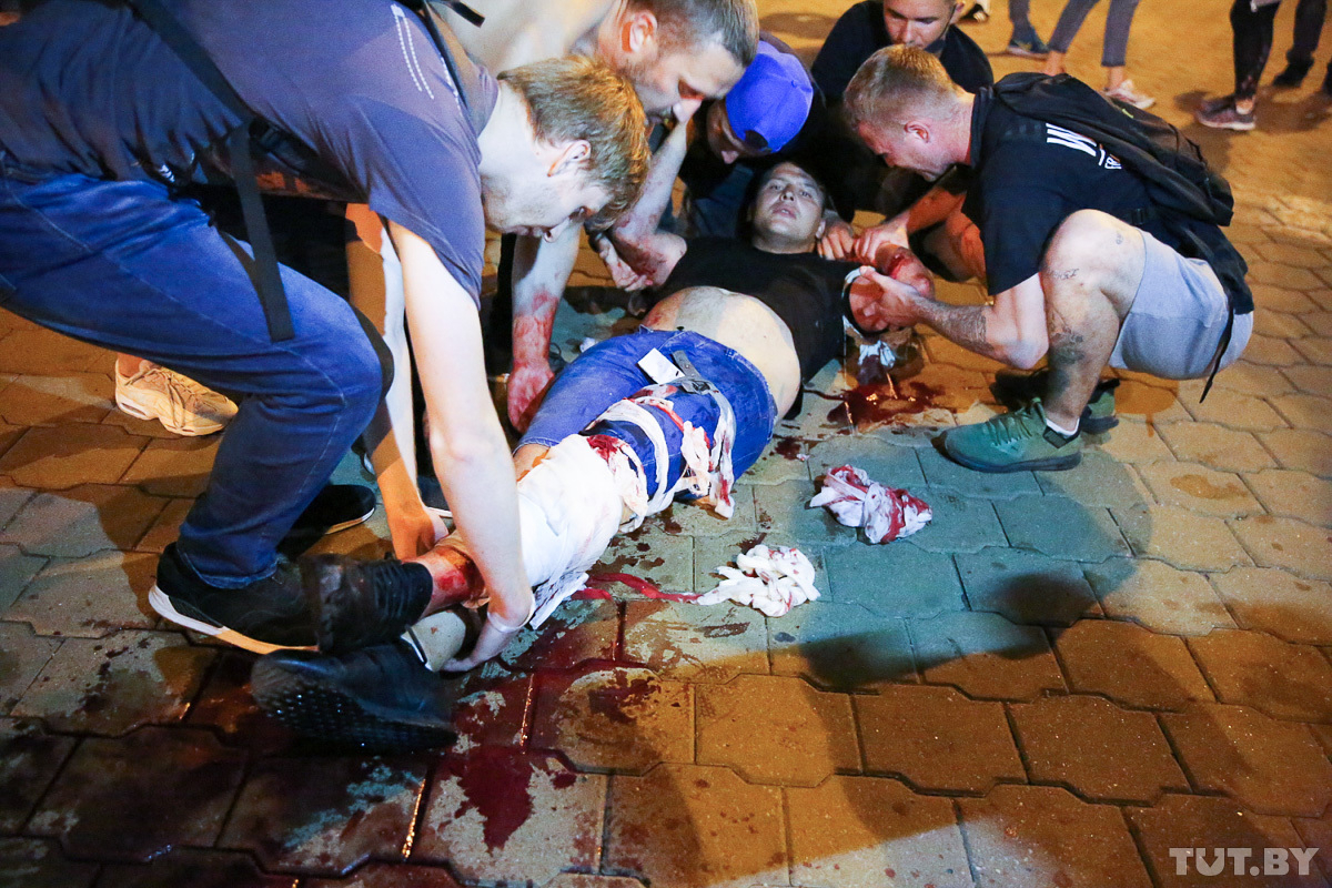 An injured protester on 10 August in Minsk. Photo: Tut.by.